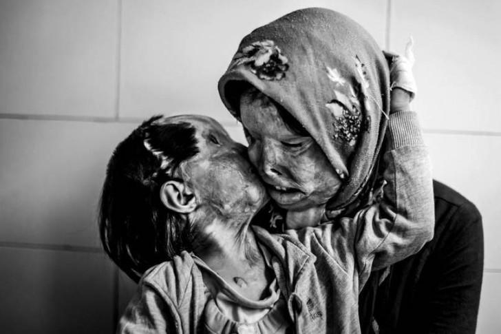 Mama i jej 3-letnia córka, które zostały oblane kwasem przez męża