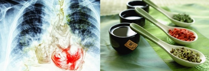 Lung-cancer-Complementary-and-Alternative-Medicines
