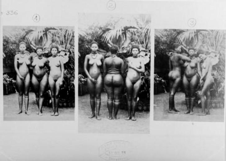 """Te kobiety zostały zaangażowane do pracy w paryskim zoo ze względu na genetyczną cechę budowy ciała zwaną Steatopygią, czyli nadmiernym odkładaniem się tłuszczu na pośladkach oraz nadmiernym wygięciem kręgosłupa – lordozą. Europejczycy mogli przyjść do zoo obejrzeć ich """"krągłości""""."""