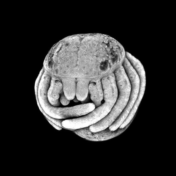 spiderembryo