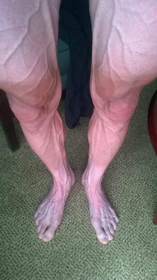 bartosz-huzarski-nogi