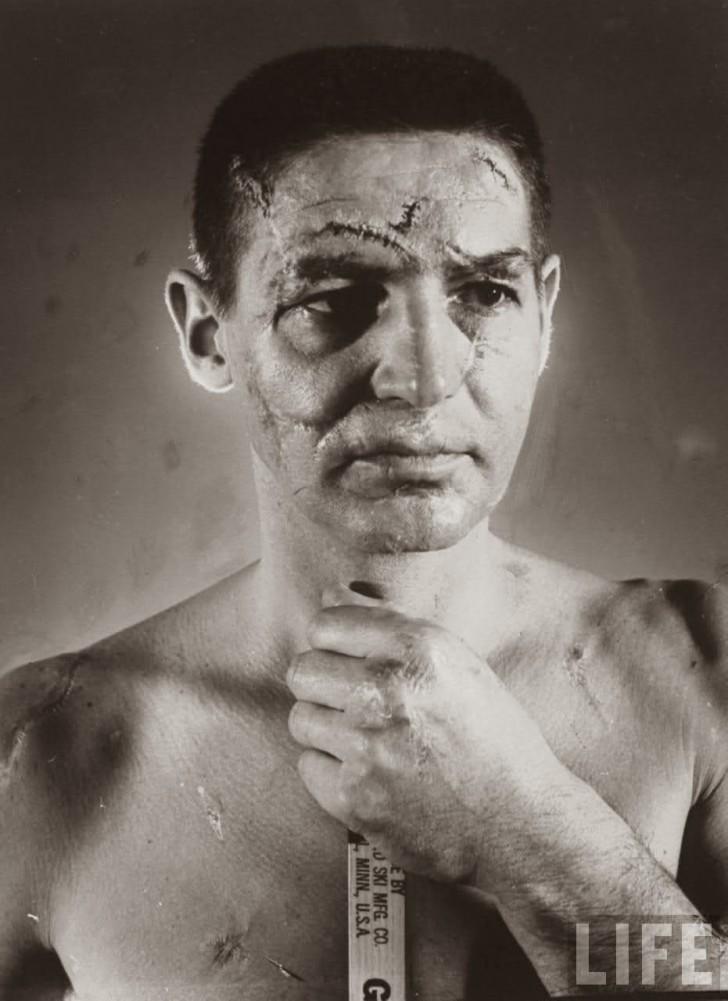 Słynne zdjęcie Terry'ego Sawchuka mające zobrazować (za pomocą makijażystów) wszystkie 400-ta szwów/blizn których doznał jako bramkarz hokejowy zanim wprowadzono obowiązkowe maski