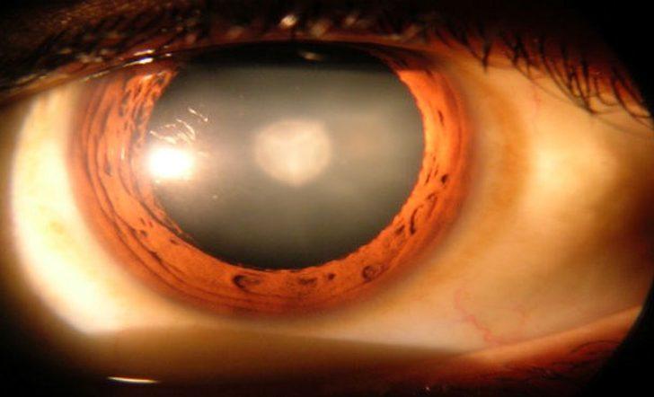 cataract-surgry-610x370