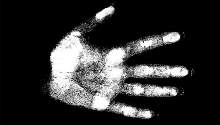 Jakie fakty na temat zdrowia możesz odczytać z dłoni?