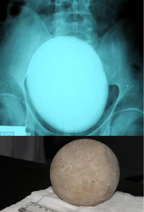Największy kamień nerkowy - 1.1kg, 17cm średnicy - należący do Sandora Sarkadi z Węgier