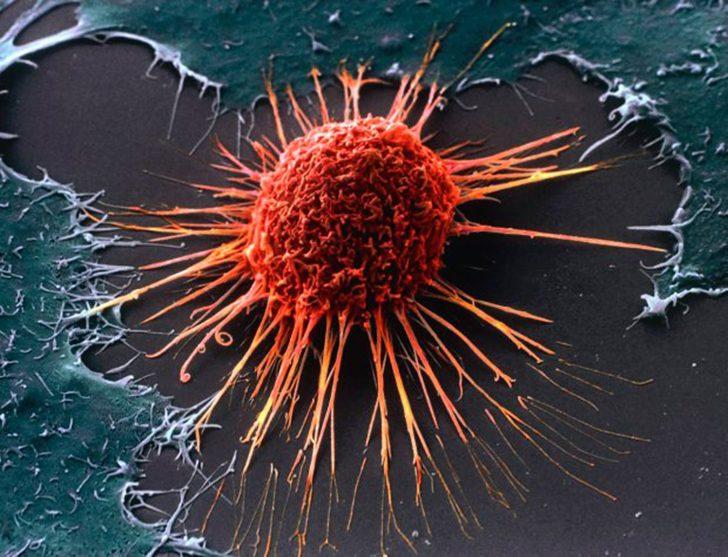 z11026810Q,Komorka-raka-szyjki-macicy-pod-mikroskopem-elektro
