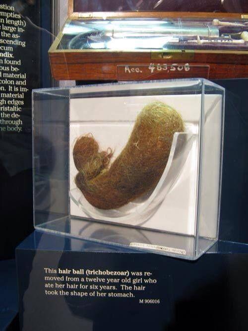 Trichobezoar, czyli zbitek włosów, wyciągnięty z żołądka 12-letniej dziewczynki (po 6-ciu latach jedzenia włosów przybrał taki kształt)