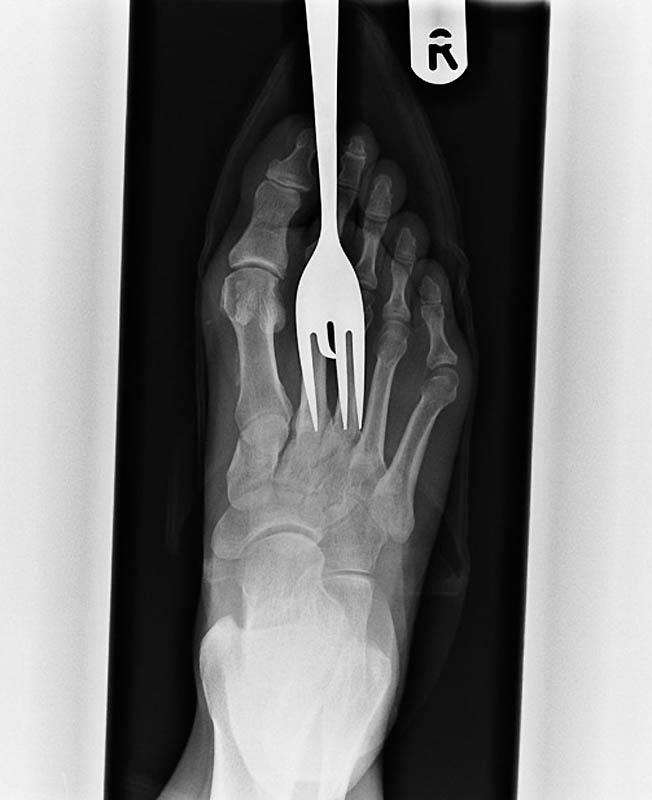Rentgen stopy pacjenta, który nadepnął na widelec.