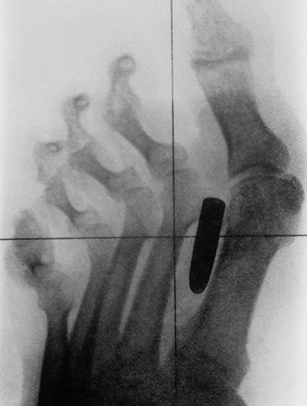 Historyczne zdjęcie rentgenowskie żołnierza wojny burskiej