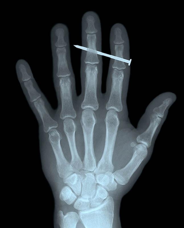 Palce wskazujący i środkowy dorosłego mężczyzny przebite gwoździem.