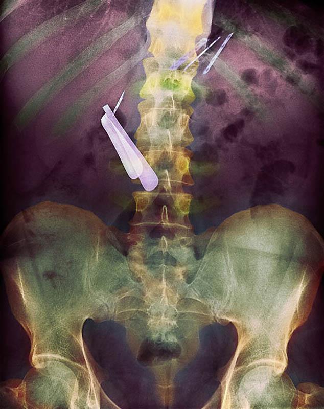 Kolorowe rentgenowskie zdjęcie żołądka pacjenta, który połknął brzytwę (środek) i ostrze (prawy górny róg).