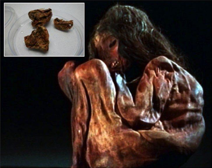 Aconcagua-mummy-lung-pieces-insert