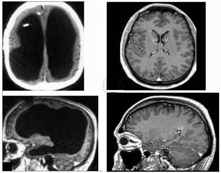 Medyczne kuriozum – człowiek, który żył bez mózgu nawet o tym nie wiedząc