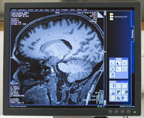 najlepiej-przebadany-mozg-2
