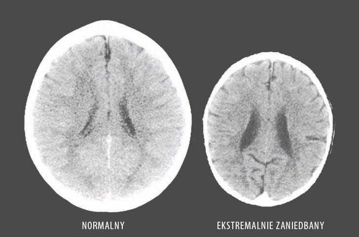 mozg-dziecka-ciekawe