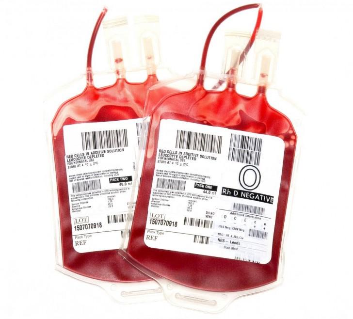 Jeśli twoja grupa krwi ma wskaźnik Rh- należysz do wyjątkowej części naszej populacji