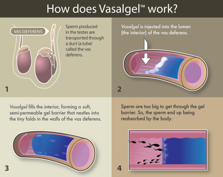 Vasalgel_Infographic_Lina-WEB