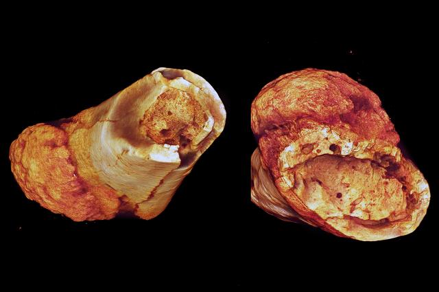 Modele powierzchniowo renderowane pokazać rdzeniastego Wypełnienie gąbczastej kości korowej i zogniskowany zniszczenie pobliżu marginesie okostnej.