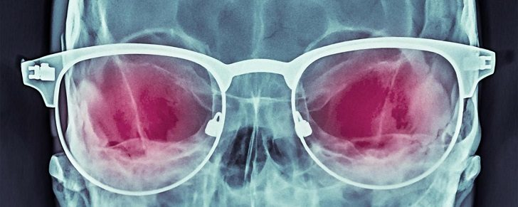 Skull with glasses, coloured X-ray.