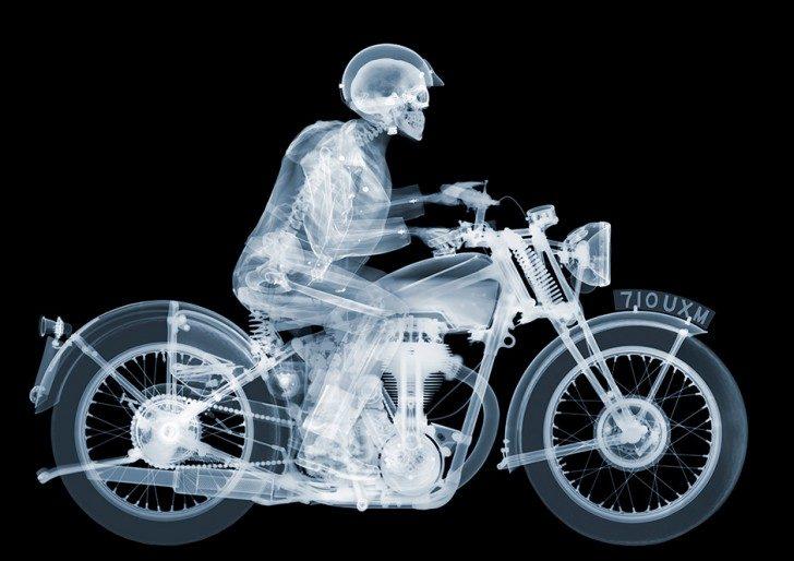 x-ray_intro