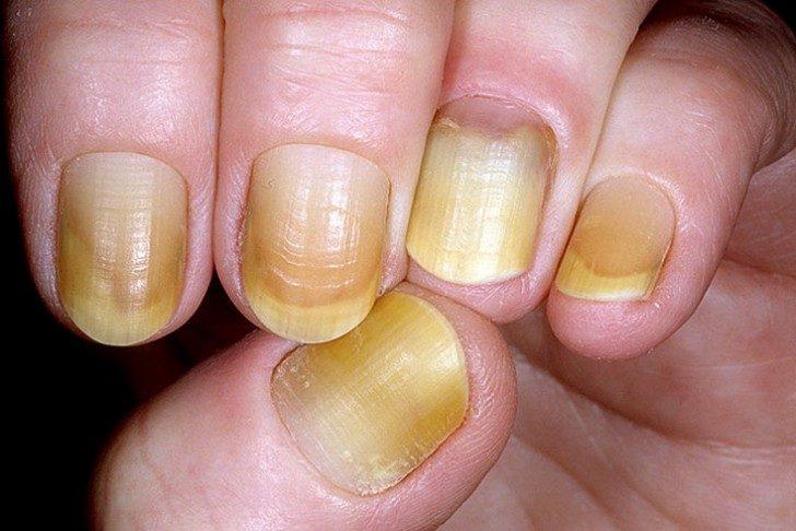 zdrowie-paznokcie-kolor