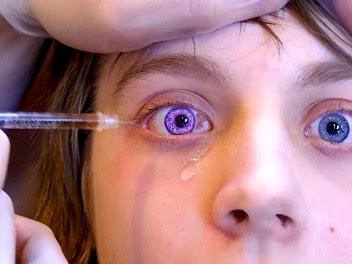 Osoba z bielactwem oczu podczas zabiegu chirurgicznego. Fioletowy kolor tęczówki jest wynikiem oświetlania. Źródło: flickr