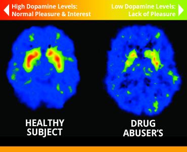 Mózg osoby zdrowej (po lewej) i uzależnionej od narkotyków (po prawej)