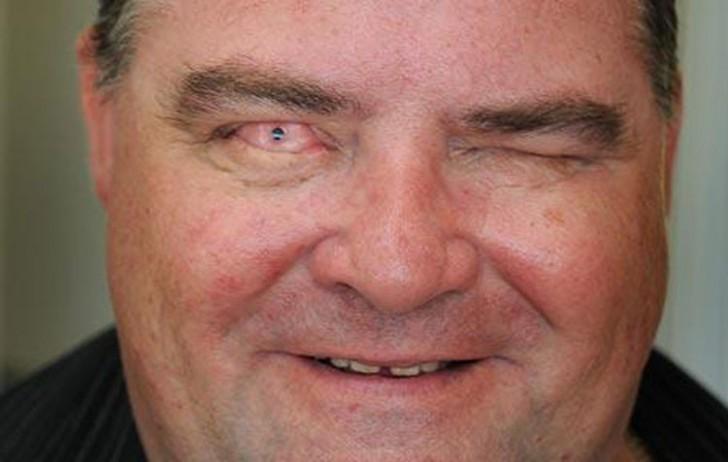 bunnie-adams-y-martin-jones-ciegos-que-ahora-ven-por-un-trasplante-de-dientes1-750x476