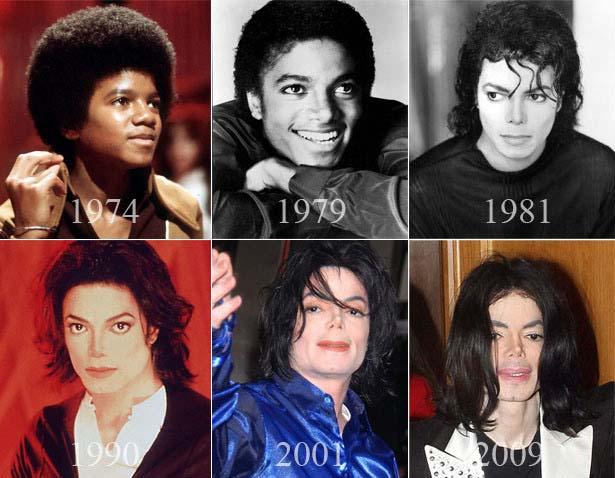Michael Jackson i jego metamorfoza rok po roku.