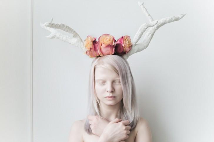 Porcelanowi ludzie. Czym właściwie jest albinizm?